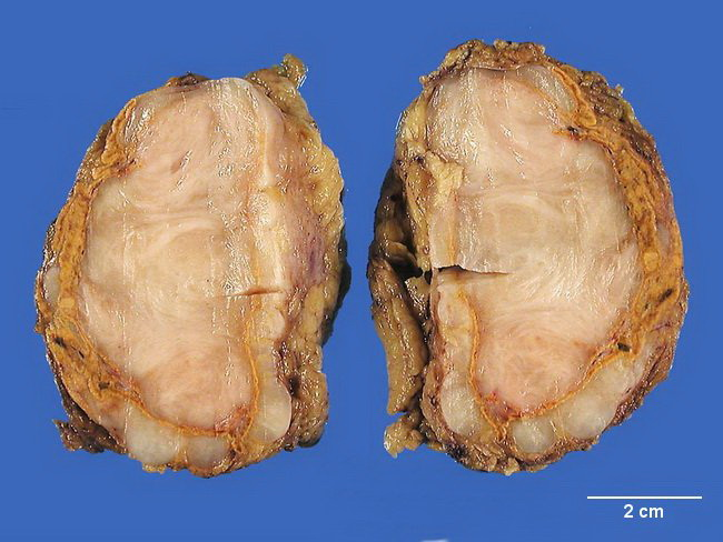 SoftTissue_Ganglioneuroma_Gross4_resized.jpg