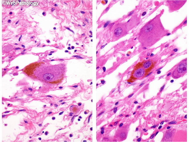 SoftTissue_Ganglioneuroma_PigmentComposite_Resized.jpg