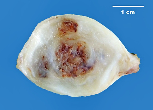 SoftTissue_Neurofibroma4_Resized.jpg