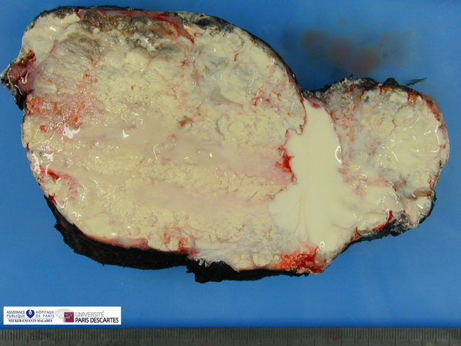 SoftTissue_TumoralCalcinosis_Gross3_resized.jpg