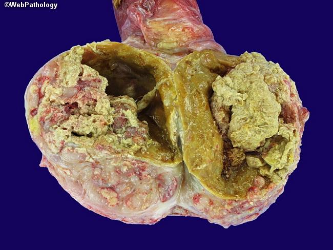 necrotic tumor