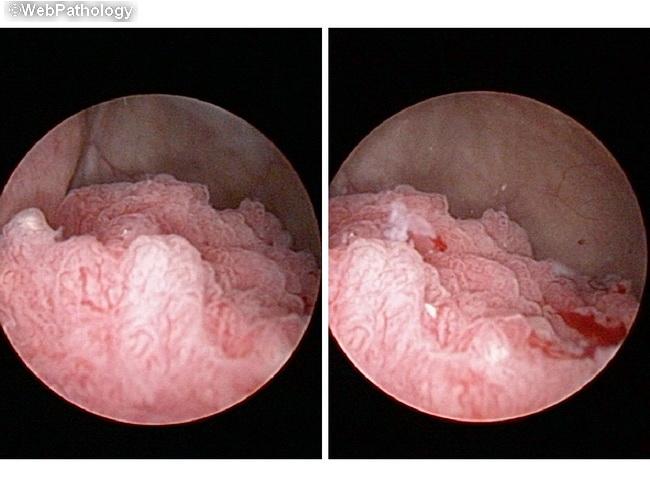papillary lesion in bladder
