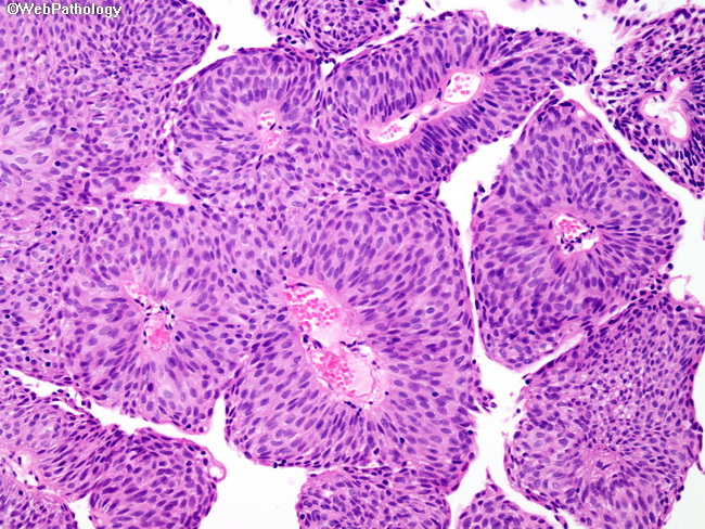 papillary urothelial tumors papilloma virus uomo sulla lingua