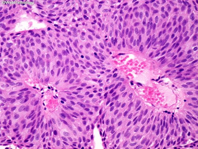 Papillary urothelial tumor, Papillary urothelial carcinoma pta