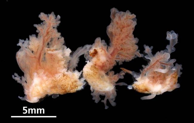 Bladder urothelial papilloma Inverted urothelial papilloma histology.