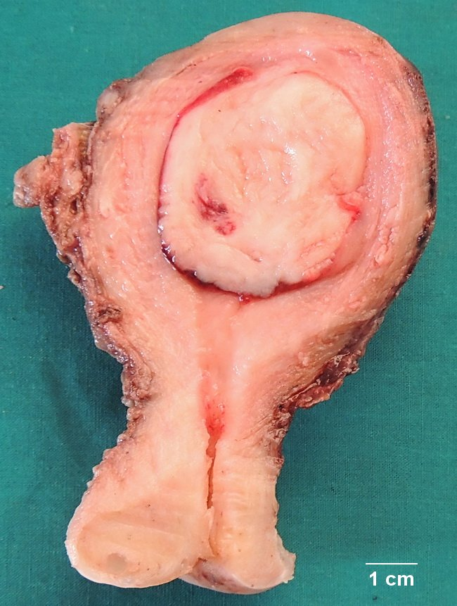 Fibroid in addition X A together with Uterus Leiomyoma Gross Cropped besides Preparation For Procedure moreover Doctor Examining A Female Patient. on uterus pain location