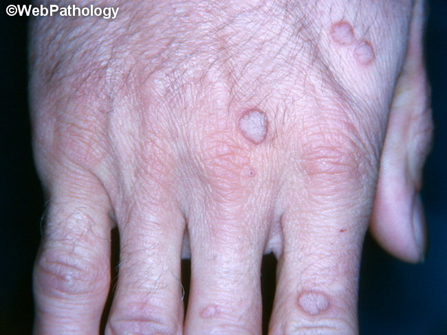 humán papillomavírus verruca vulgaris paraziták iasi